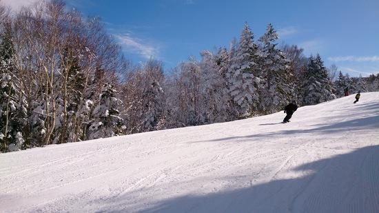 最高の晴天|竜王スキーパークのクチコミ画像2