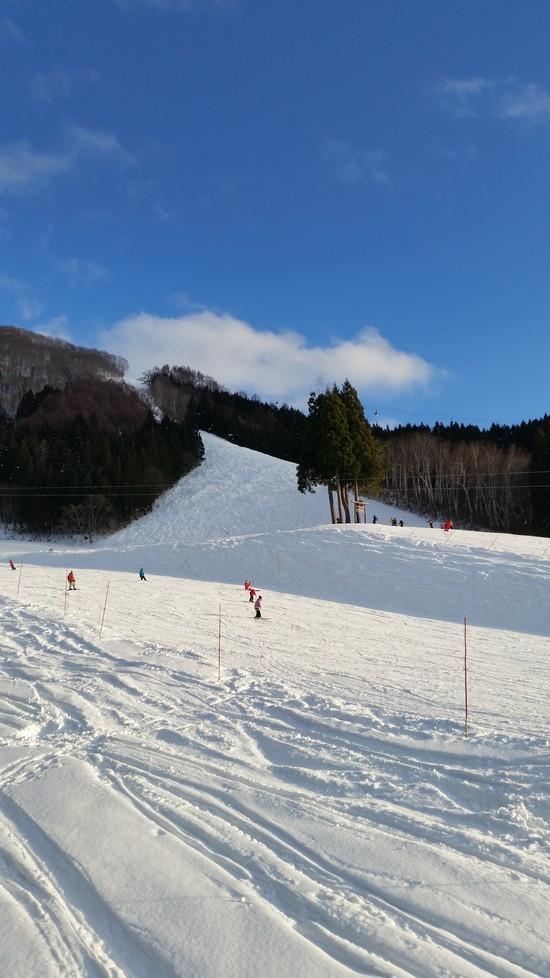 いろいろなゲレンデ 野沢温泉スキー場のクチコミ画像