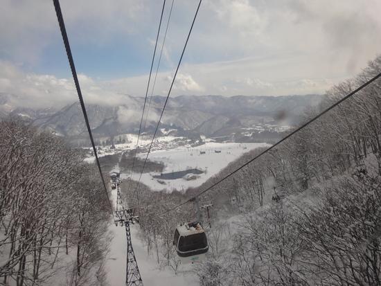 ちょっと重雪|栂池高原スキー場のクチコミ画像
