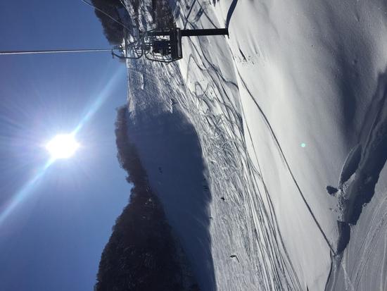 雪が少ない|志賀高原リゾート中央エリア(サンバレー〜一の瀬)のクチコミ画像1