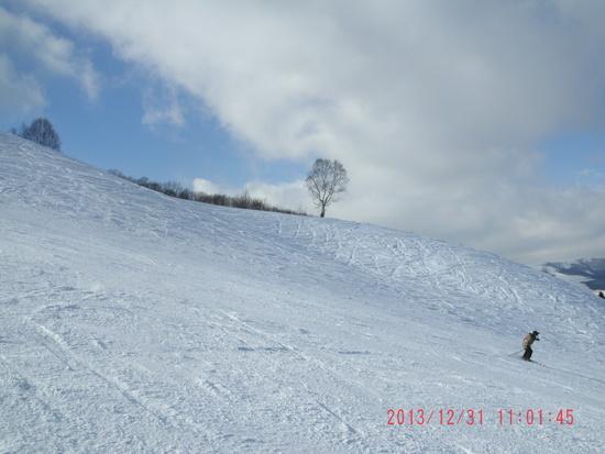 山頂からの急斜面が最高|しらかば2in1スキー場のクチコミ画像2
