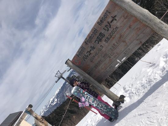 ゴンドラ|パルコールつま恋スキーリゾートのクチコミ画像