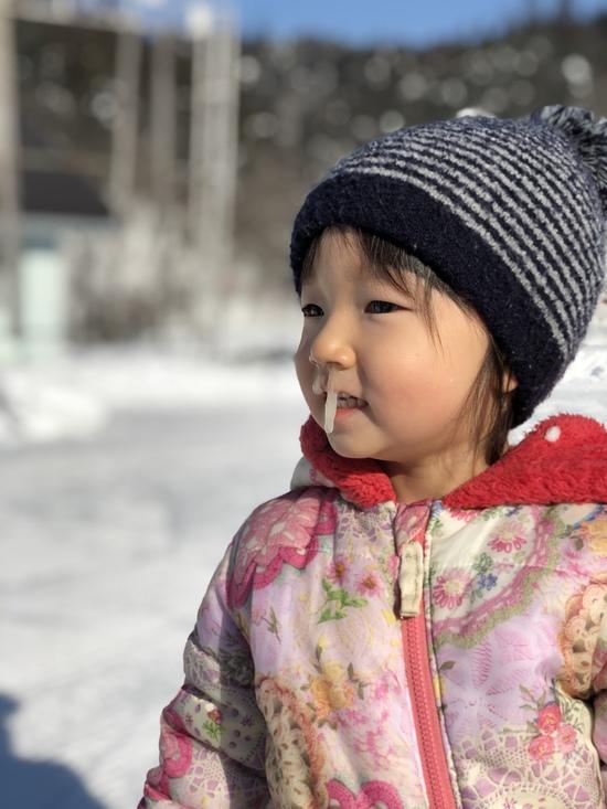 ミス鼻水|会津高原南郷スキー場のクチコミ画像