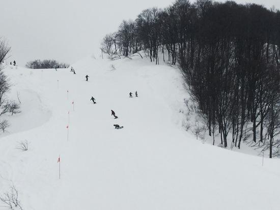 雪雪質最高|キューピットバレイのクチコミ画像2