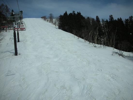 コブあり|戸狩温泉スキー場のクチコミ画像