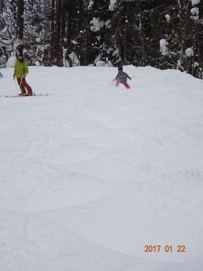 モーグルコース、全てオープン|白馬さのさかスキー場のクチコミ画像3