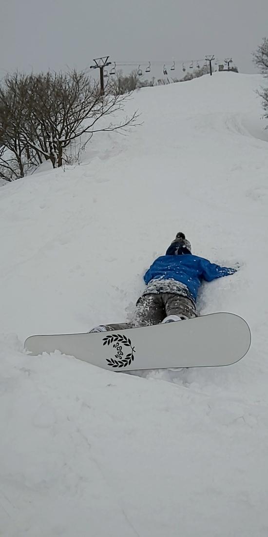 色んなコースがいっぱいある|戸狩温泉スキー場のクチコミ画像2